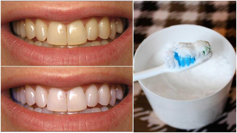 Whiten-Teeth-With-Baking-Soda-www.koorook.com-7